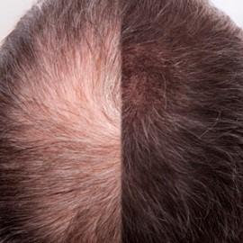 Redukcja wypadania włosów